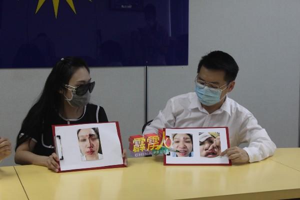 刘国南(右起)向吴女士了解当晚醉汉对其造成的伤害;照片中的吴女士满脸是血。